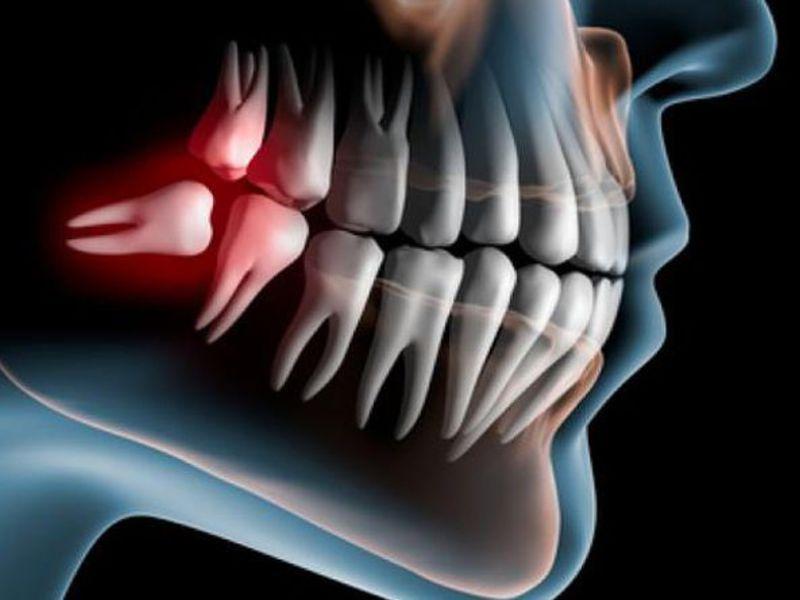 Gambar Kebijaksanaan Gigi Video Pendidikan Mengenai Gigi